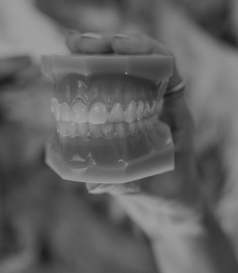 Treatment - Ringway Dental