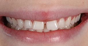 Before - Ringway Dental