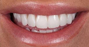 After - Ringway Dental